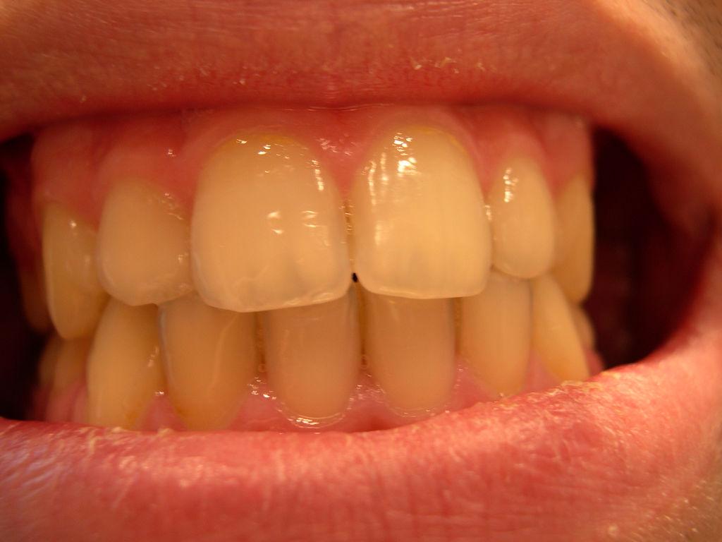 Infección en el nervio dental