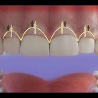 Clínica dental en Madrid explica causas y procedimiento de gingivectomía