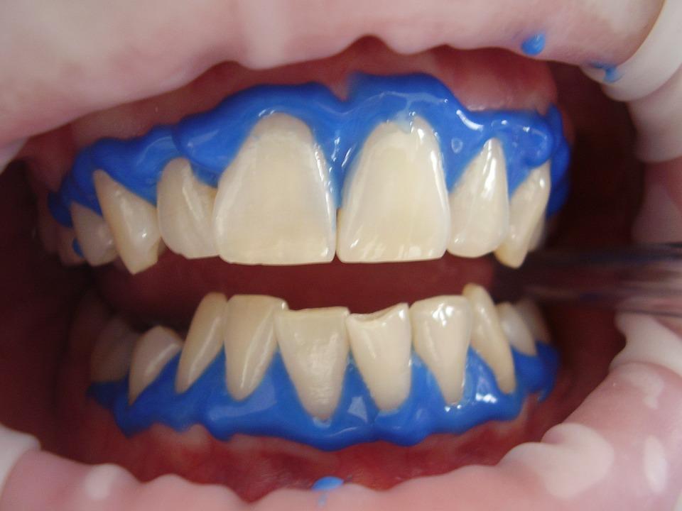 Consultas frecuentes acerca del blanqueamiento dental