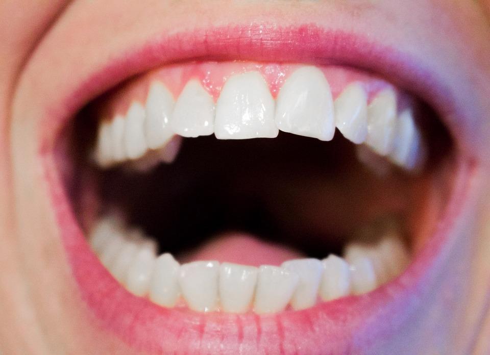 Qué hacer frente a la inflamación de las encías