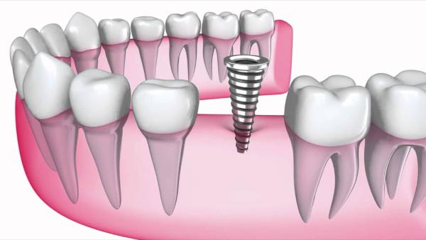 clinica dental en Agüelles
