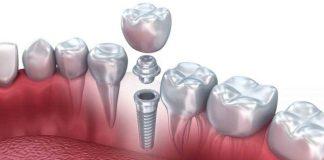 Implantes dentales en Alcorcón