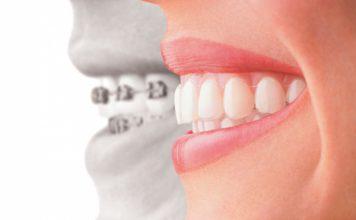 ortodoncia-invisible-madrid