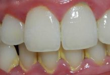 Clínica dental Madrid Centro