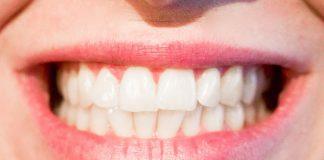 Diferentes enfermedades que afectan a las encías