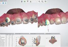 Escáner 3D.Digitalización. Abdul Nasimi