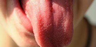 Qué es la glositis