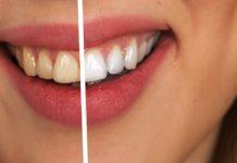 ¿Qué se debe tener en cuenta a la hora de un blanqueamiento de dientes?