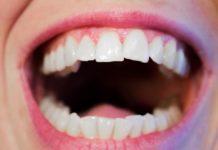 Claves que deben tener en cuenta sobre la prevención del cáncer oral