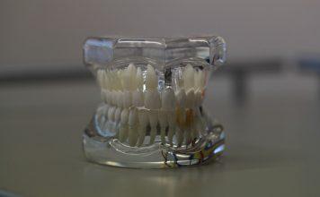 ¿Qué pasa cuando no reponemos los dientes extraídos?