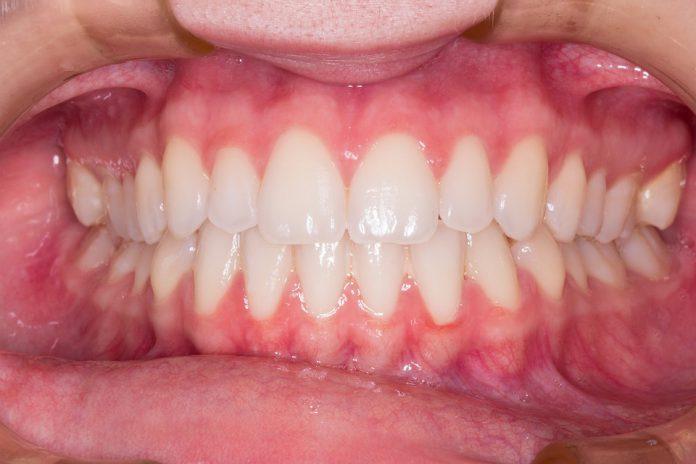 Ocho signos de la enfermedad periodontal (de las encías)