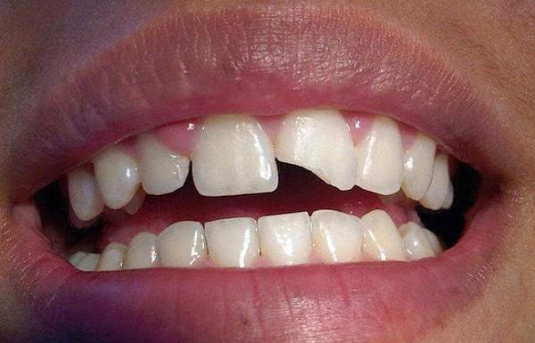 diente partido