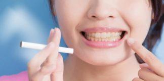 dientes manchas
