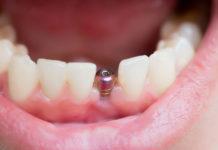 limpieza-implantes-dentales