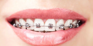 ortodoncia-correctiva