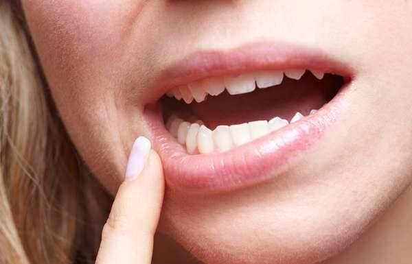 perdida diente