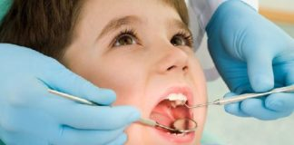 corona dental pediatrica