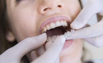 ortodoncia invisalign adultos