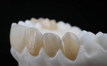 resina dientes