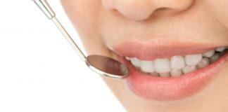 Caries dental. Vivanta
