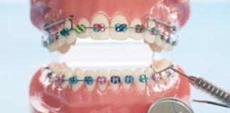 Ortodoncia en ancianos
