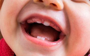 dientes natales