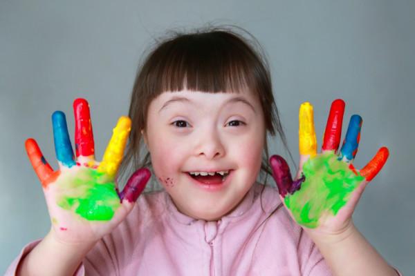 Los problemas de la ortodoncia y el Síndrome Down-Dentista en tu ciudad