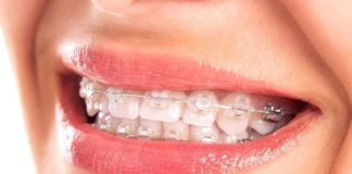 brackets esteticos