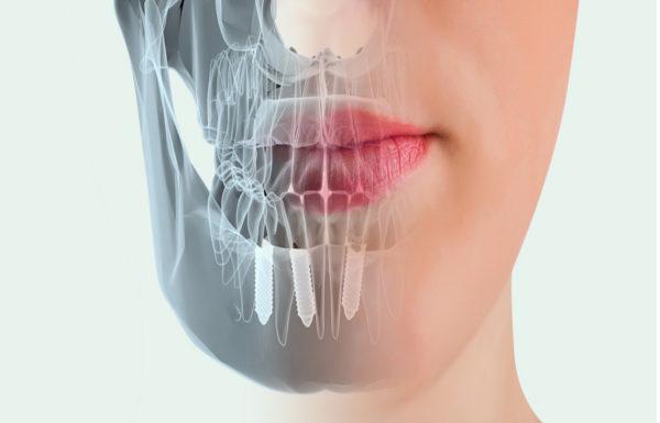 dentistas-en-madrid-implantes-dentales-clinica-dental-pilar-garrido2