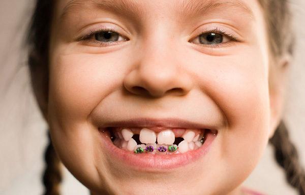 ortodoncia niños