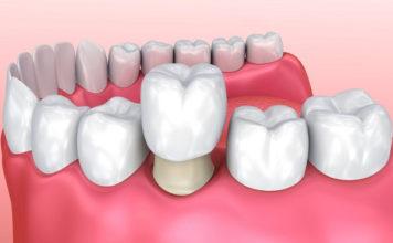 dentista-en-tu-ciudad-coronas-dentales