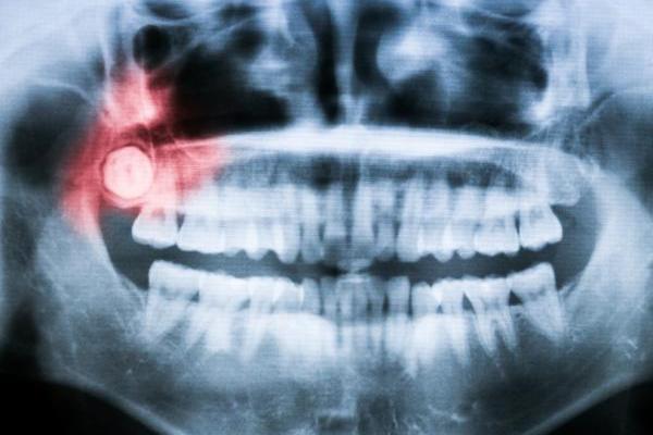 molar 6 años