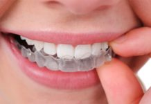 ortodoncia invisalign madrid max dental