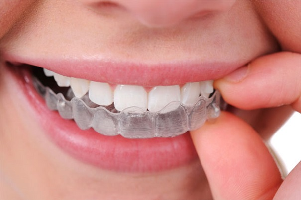 ortodoncia invisalign madrid max dental