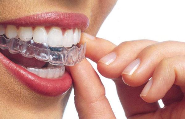 Los 7 tratamientos de Ortodoncia invisible Invisalign