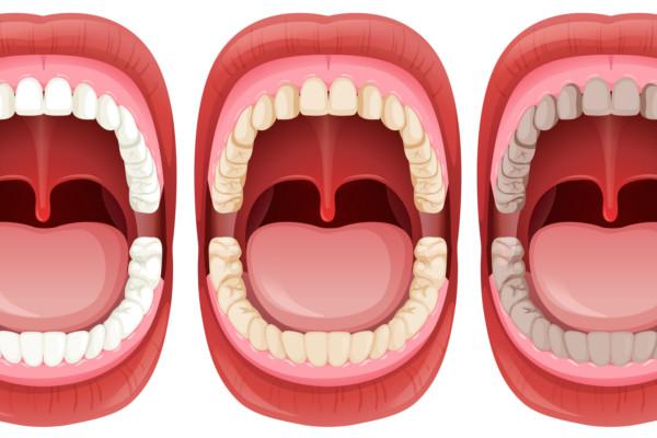 Mancha dientes. Dentista en tu ciudad