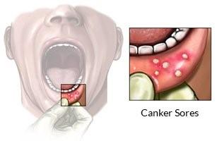 aftas bucales-dentistas en madrid