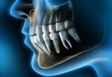 endodoncia-vs-implantes-dentales