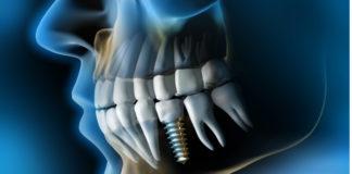 endodoncia-vs-implantes-dentales