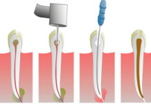 endodoncias-dentistas-en-madrid