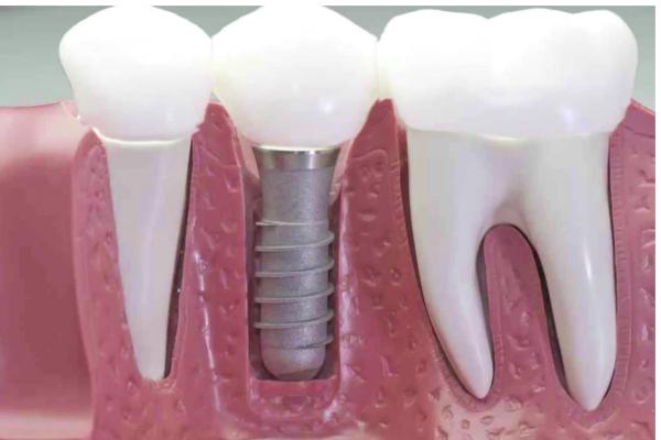 implantes-dentales-en-madrid-centro