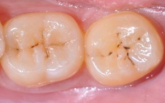 tipos-de-caries-dental