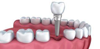 implantes-dentales-en-madrid