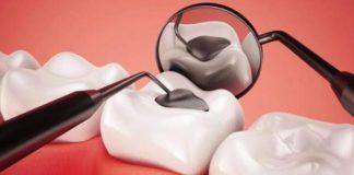tideglusib-dentistas-en-madrid