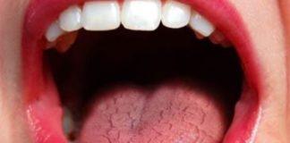 boca seca xerostomia