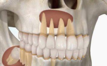quiste-odontogenico-dentistas-en-madrid