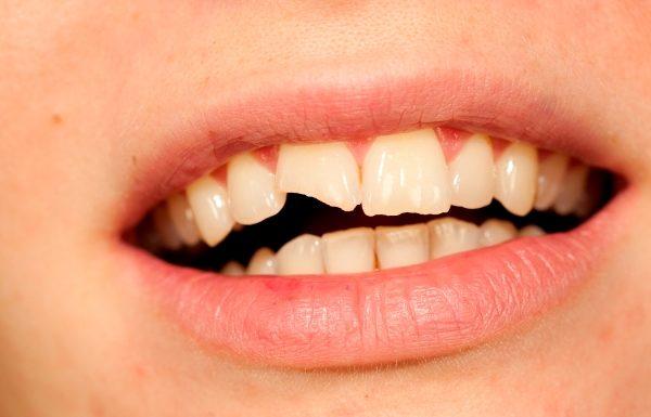 reconstruccion dental fractura