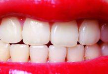 recontoneado dental dentistas en madrid