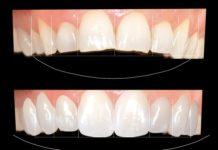 sonrisa ideal dentistas en madrid