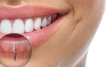 clinica implantes dentales madrid